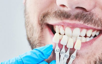 Considering Lumineers or Veneers but Wondering Which Option Is Better for You?